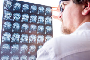 What to Expect at a Neurological Exam